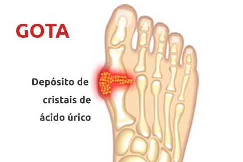 Gota - S.O.S Medicos - Taviclinica