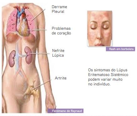 Lupus - S.O.S Medicos - Taviclinica