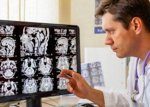 Neurologia | S.O.S Médicos Tavira